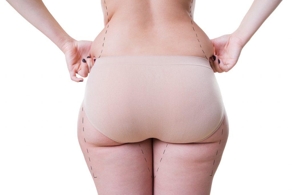 Frau mit Fettpolstern an den Beinen und an der Hüfte